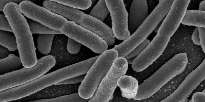 Image: NIAID, E. coli bacteria, Flickr, Creative Commons Attribution 2.0 Generic